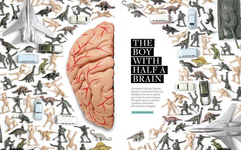 Boy_Half_Brain_Spread